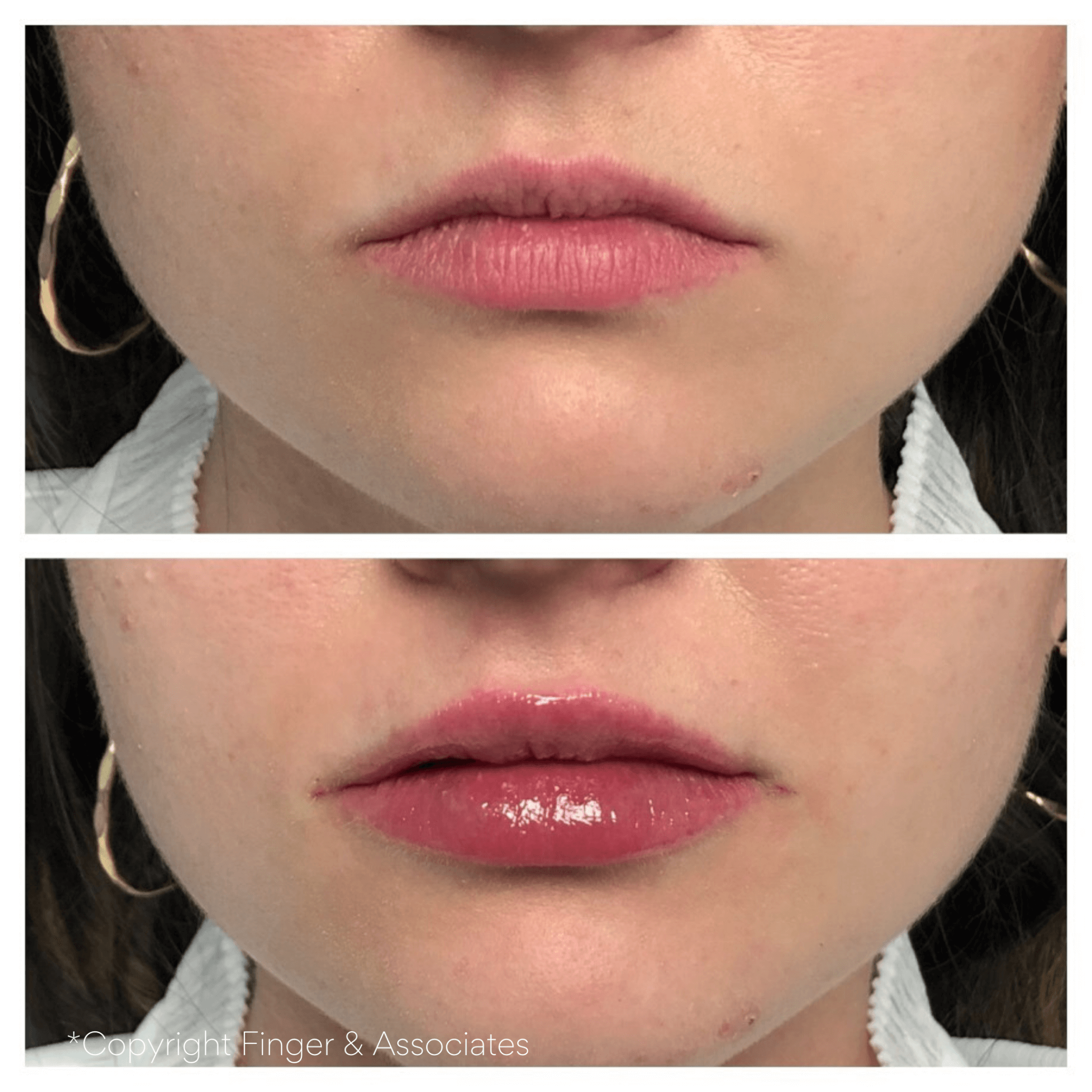 Before and after Lip Filler with Restylane Kysse the latest FDA cleared Filler for 2020.