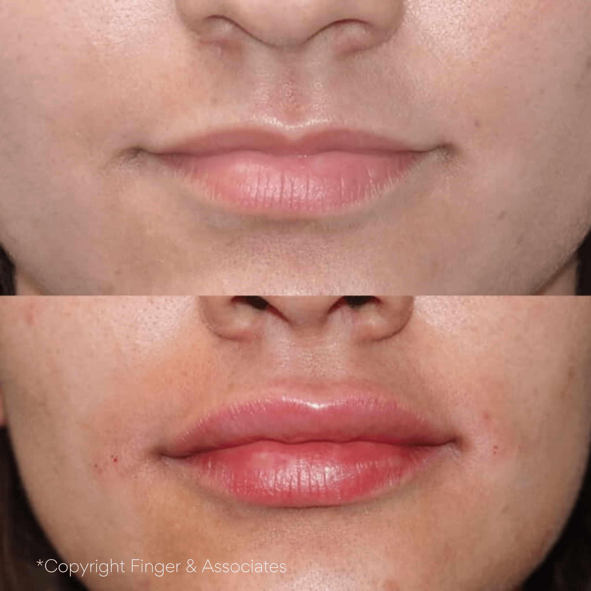 Before and after one syringe of Restylane Kysse - Swelling will subside
