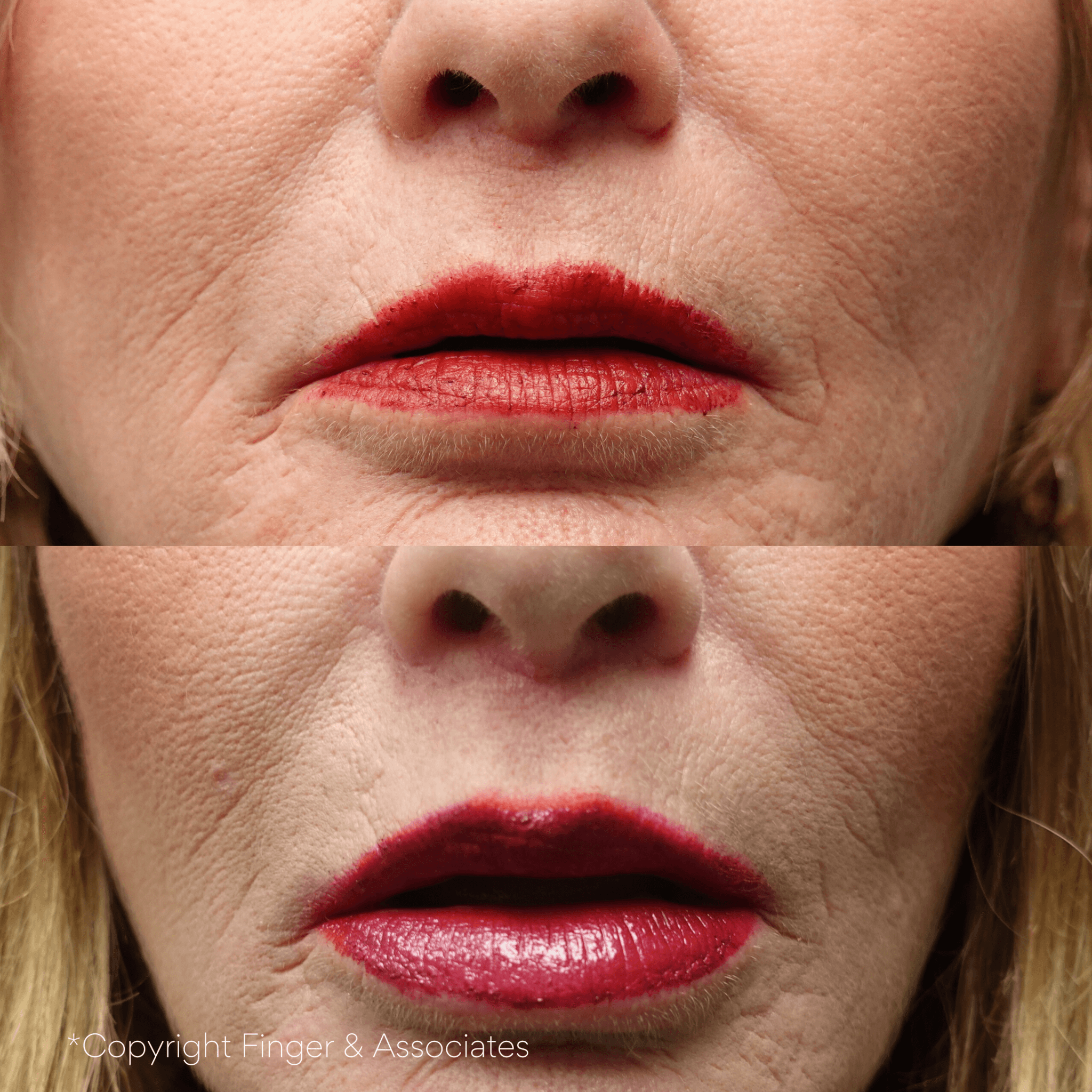 Before and After 4-months Lip Lift and Juvederm Lip Filler by Dr. E. Ronald Finger