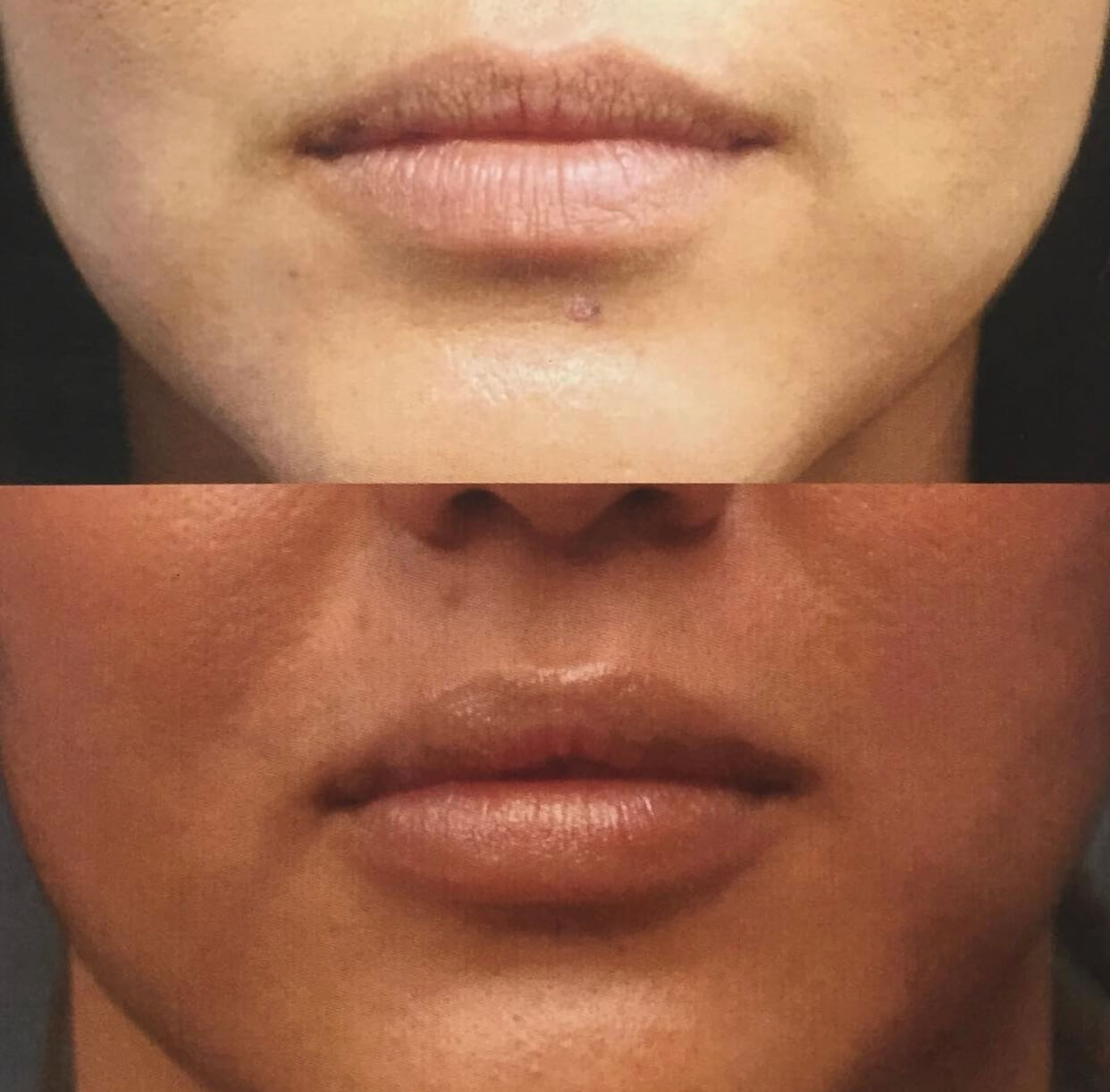 Before and after one syringe of Juvederm UP to increase volume by Nurse Dallas Sellars