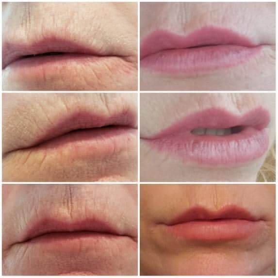 Before and after Restylane Kysse for Lips by Nurse Dallas Sellars