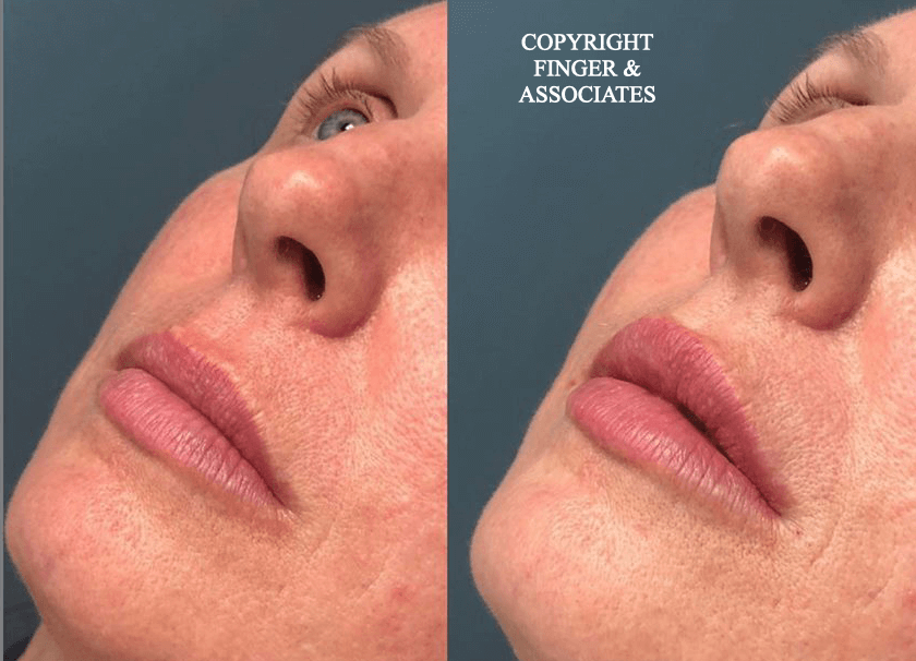 Before and after 1/2 Syringe of Juvederm by Nurse Dallas Sellars