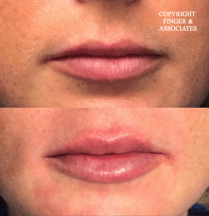 Before and after Lip Filler by Dallas Sellars