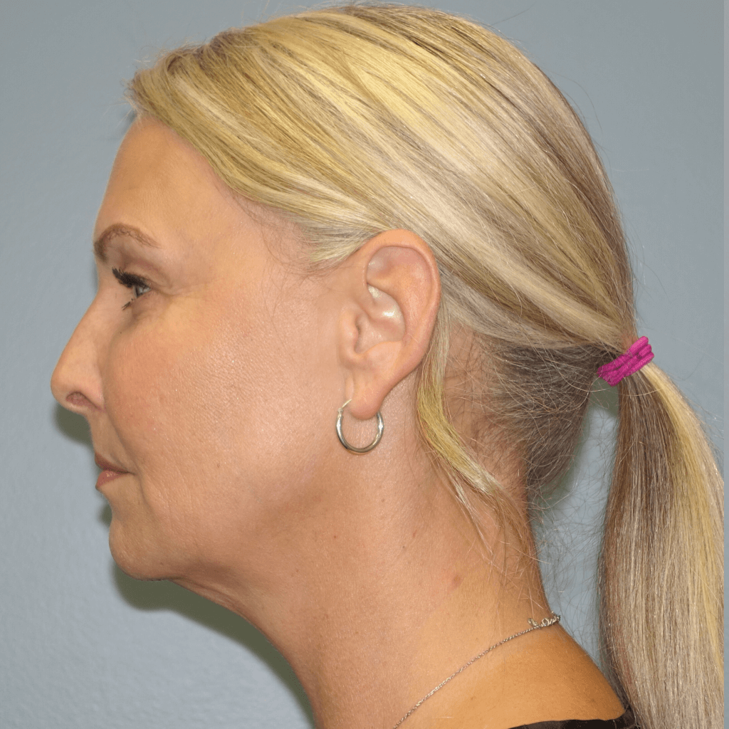 Before Dr. Finger performed Renuvion Liposuction