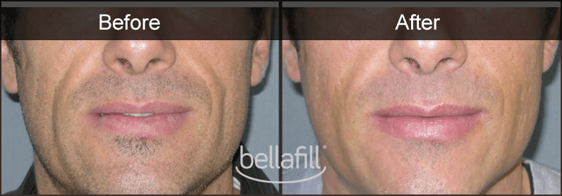 BELLAFILL ON A MAN BEFORE AND AFTER