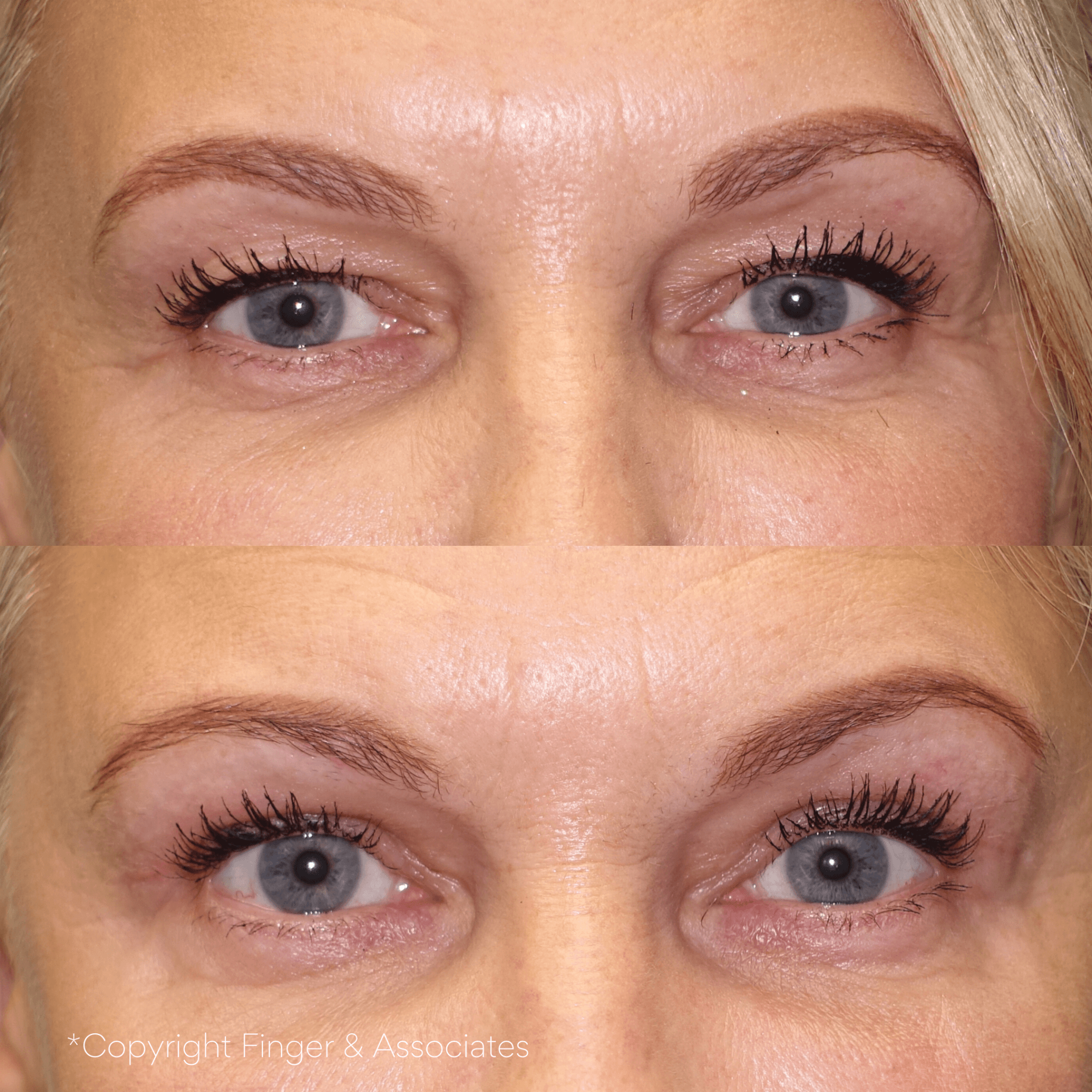 Before and after 4-month of receiving Blepharoplasty - upper eyelid lift