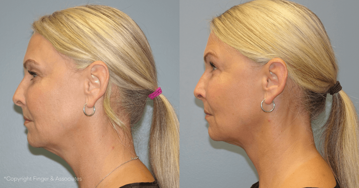 Before and After Lipo of Lower Face and Neck + Renuvion for Skin Tightening