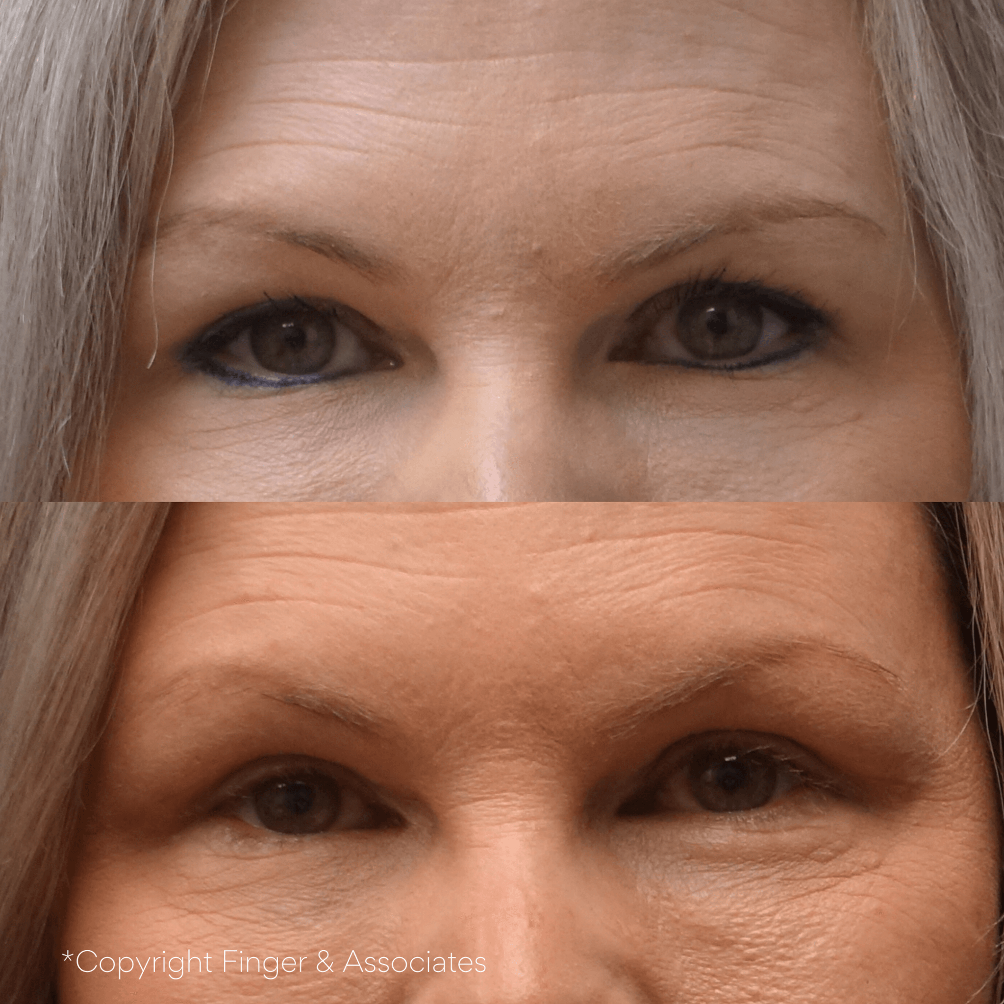 Before and After Upper Eyelid Lift (Blepharoplasty) one month still healing