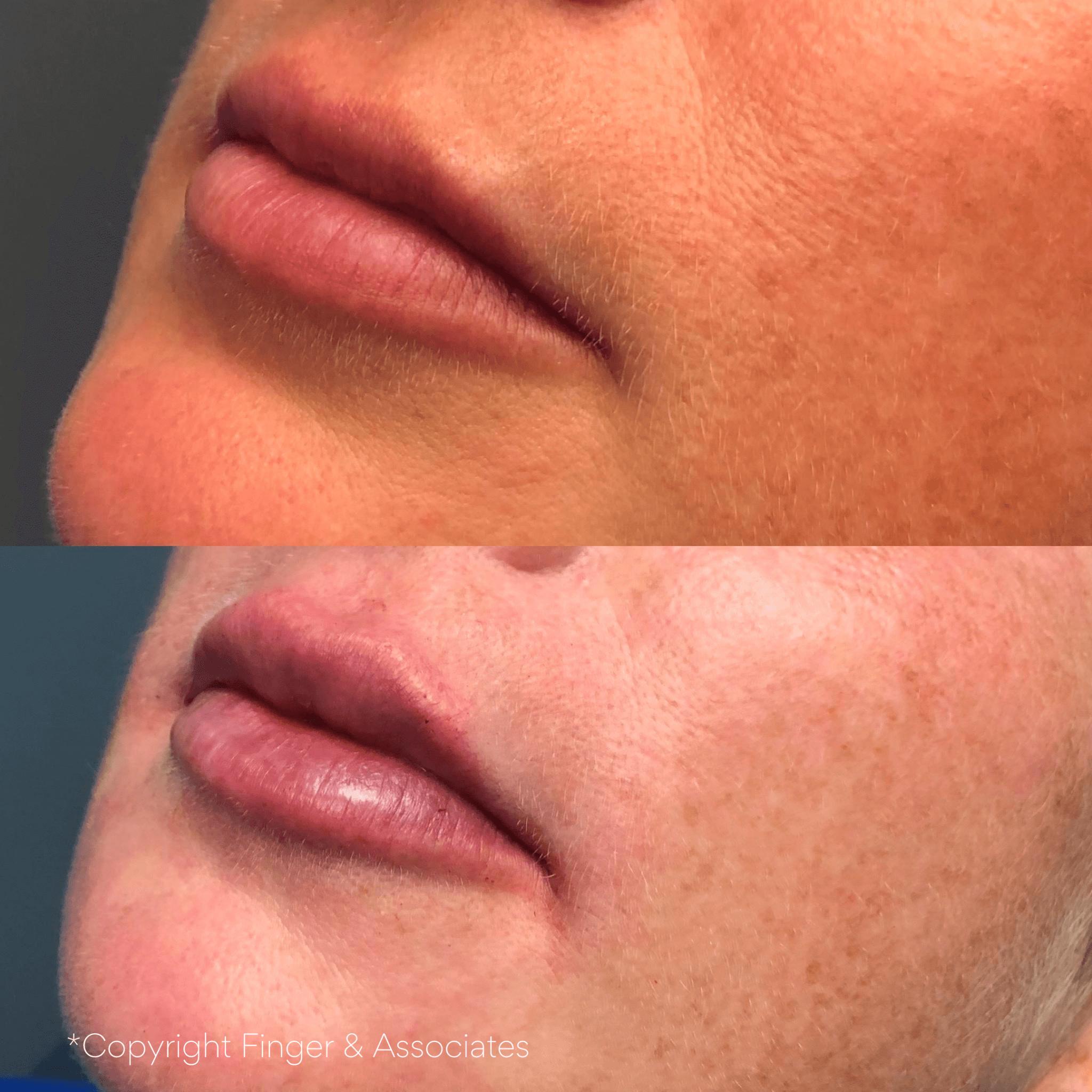 Lip Filler by Nurse Dallas Sellars