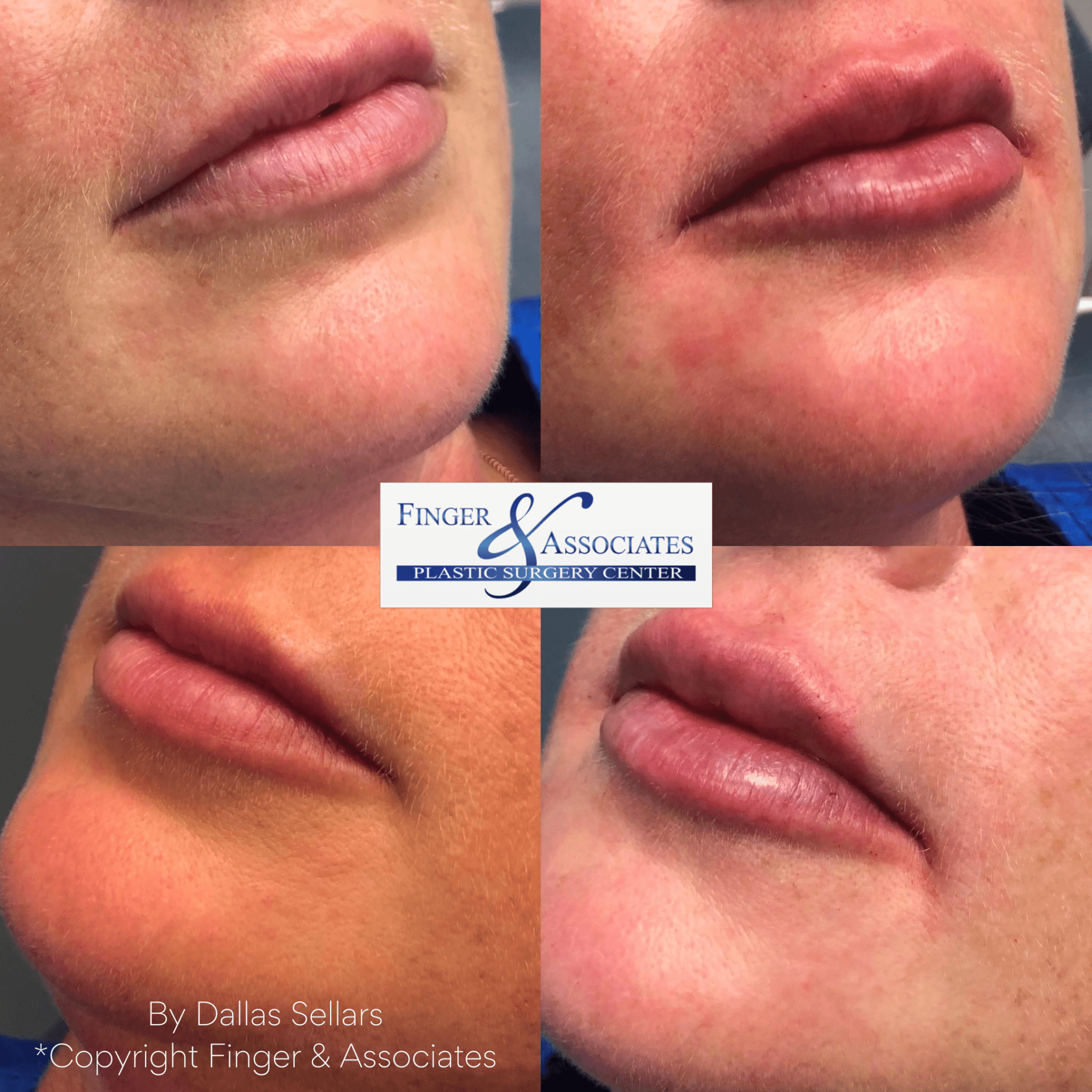 Before and immediately after 1/2 syringe of Juvederm UP by Nurse Dallas Sellars.