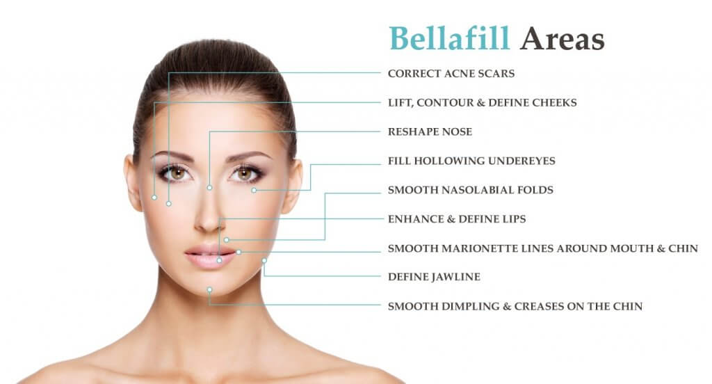 Bellafill areas you can have it injected - image