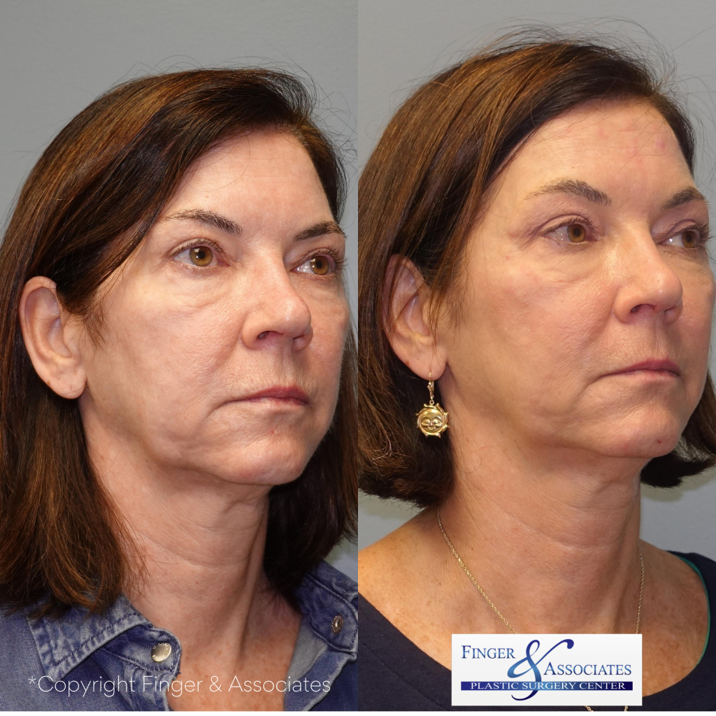 Before and after 4-months of receiving the Silhouette Instalift by Dr. E. Ronald Finger - The results will continue to improve over several months to come.