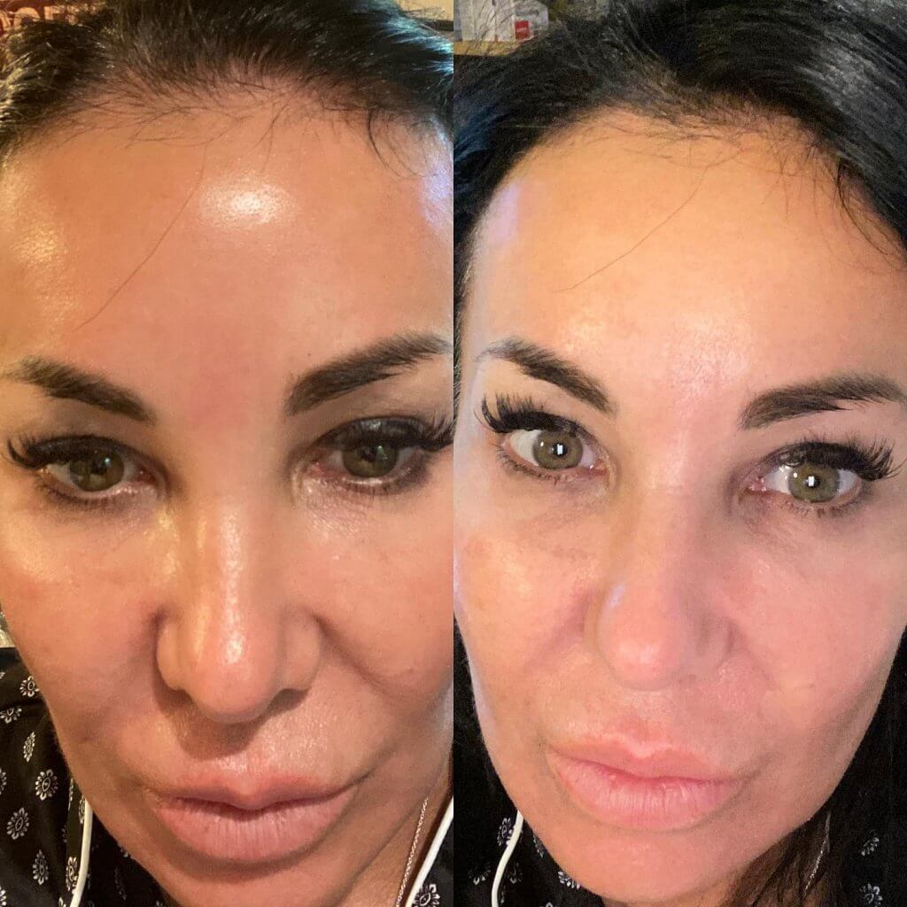 Before and After CoolPeel Treatment offered by Dr. Finger in Savannah