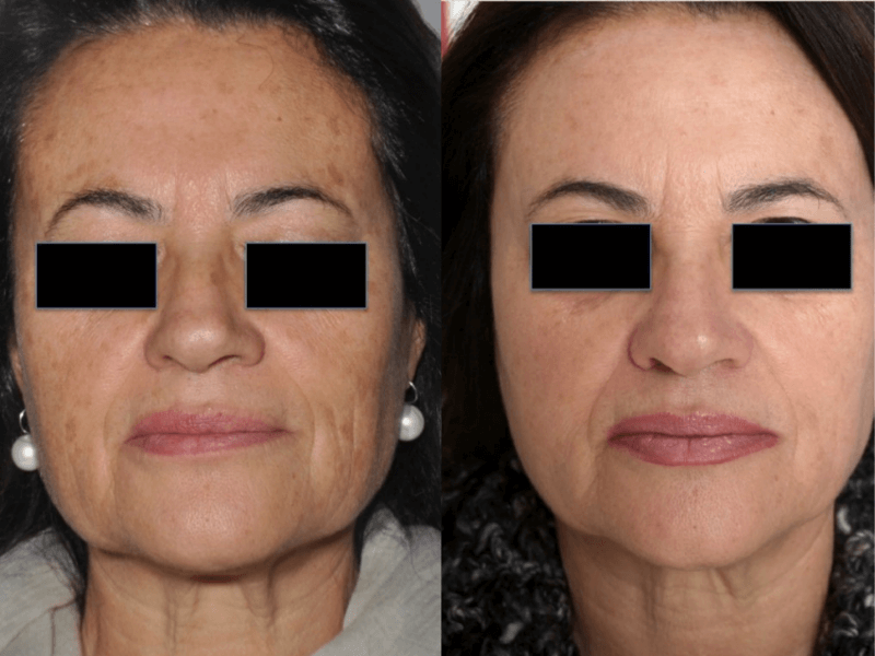 Before and After CoolPeel Skin Resurfacing Treatment offered at FInger and Associates