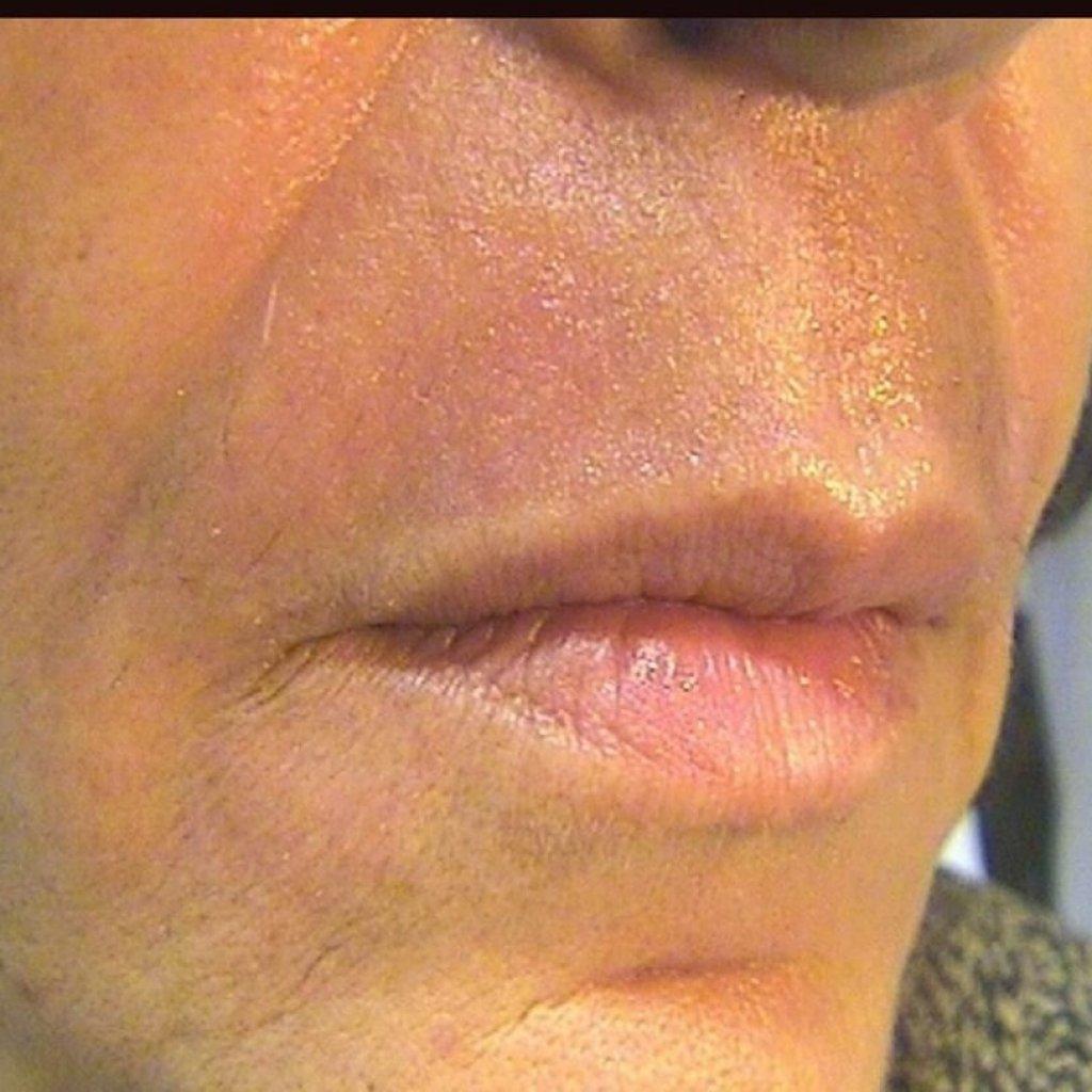 After 3 CoolPeel™ Laser Skin Resurfacing