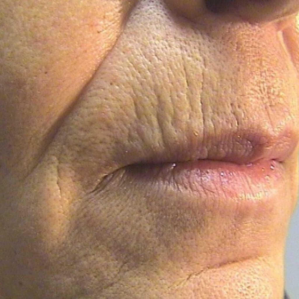 Tetra Co2 Laser System with CoolPeel™
