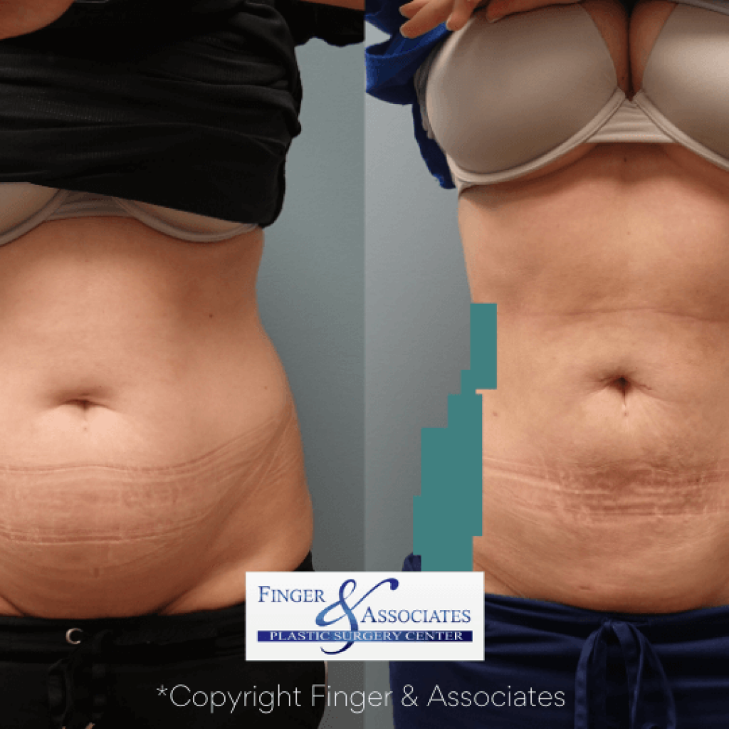 Before and after Liposuction of abs and hip rolls plus reunion