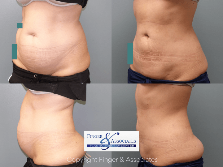 Before and after 3-months of Liposuction on abdomen and hip rolls plus Renuvion for Skin Tightening