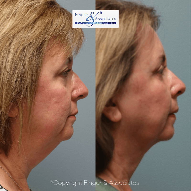 Before and after 12-months of neck Liposuction and Renuvion for skin tightening