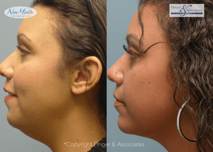 Before and after Renuvion and liposuction of the lower face and neck