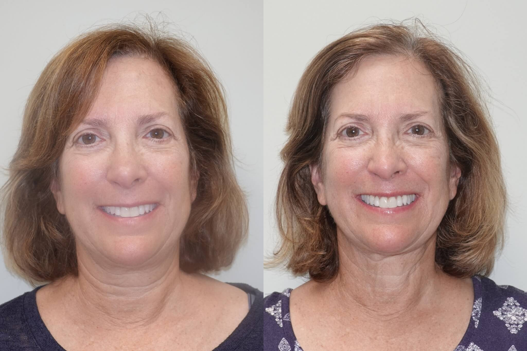 Before and after 6-months liposuction of the lower face and neck and Renuvion