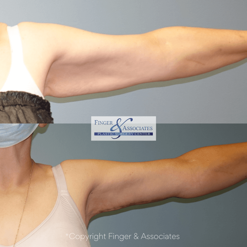 Before and after liposuction of the arms and arm lift (brachioplasty