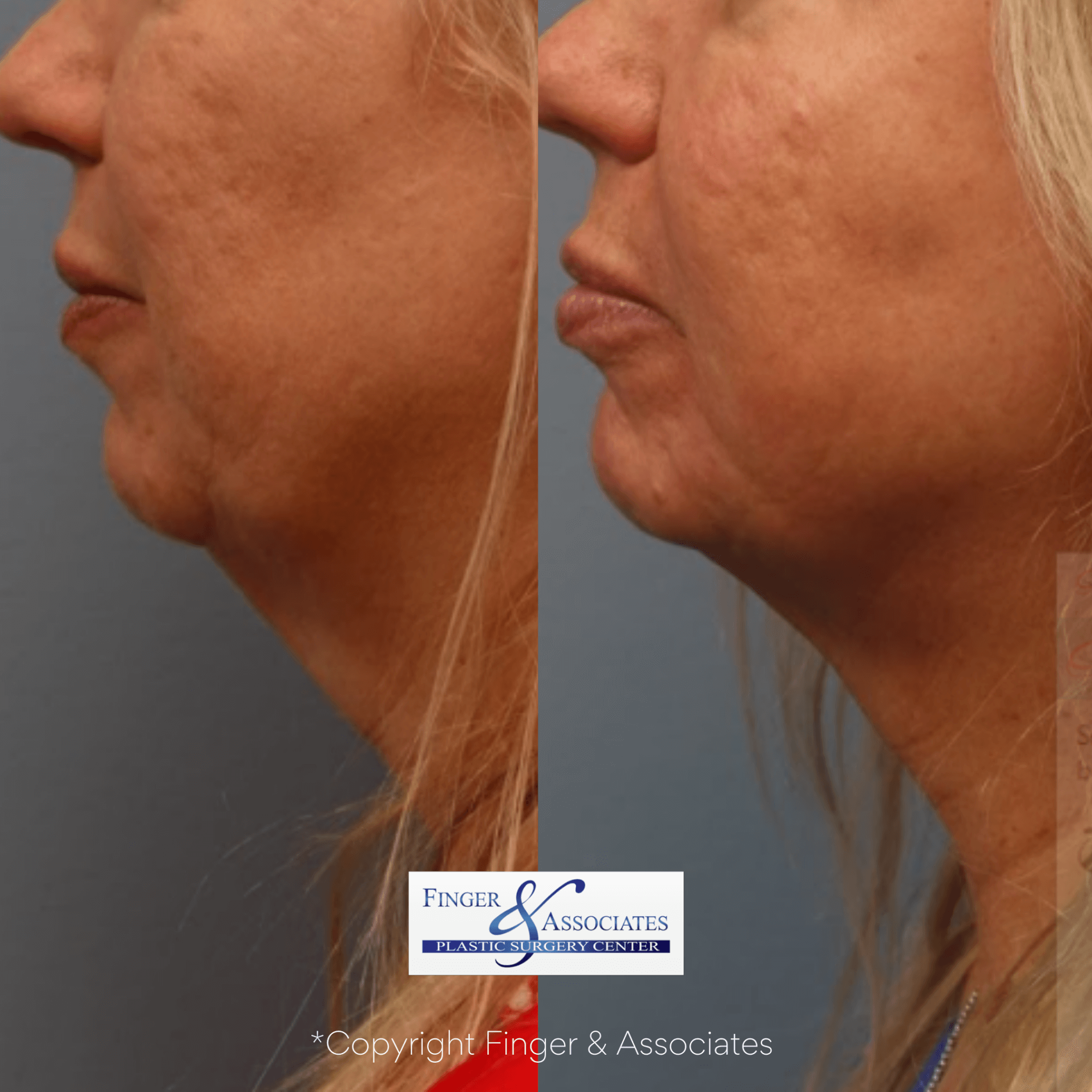 Before and after neck iposuction and thermitight for skin tightening