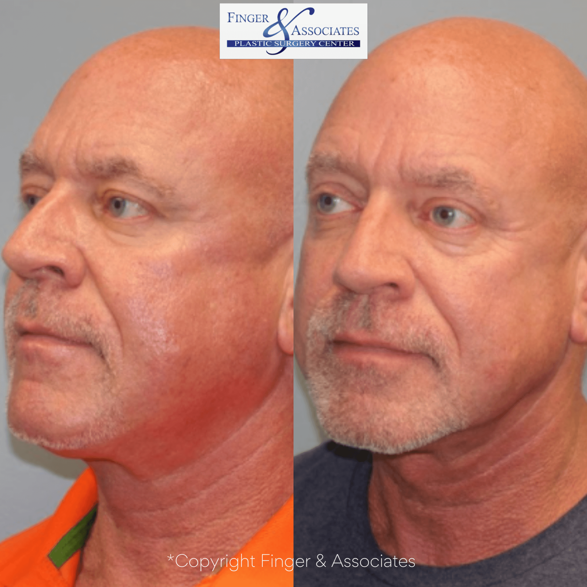 Before and after Liposuction and Thermitight of the neck