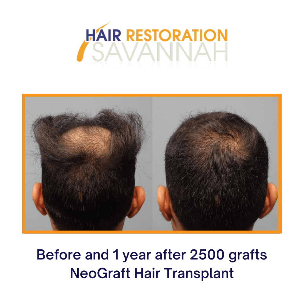 Before and after one year of receiving NeoGraft Hair Restoration