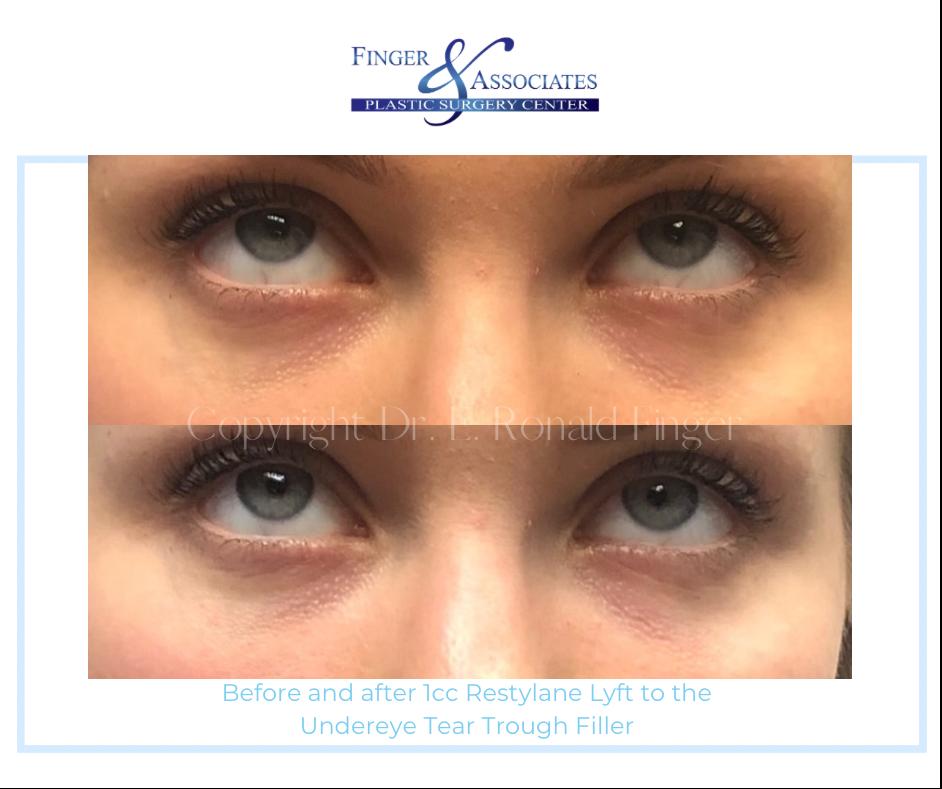 Restylane Lyft for under eye filler