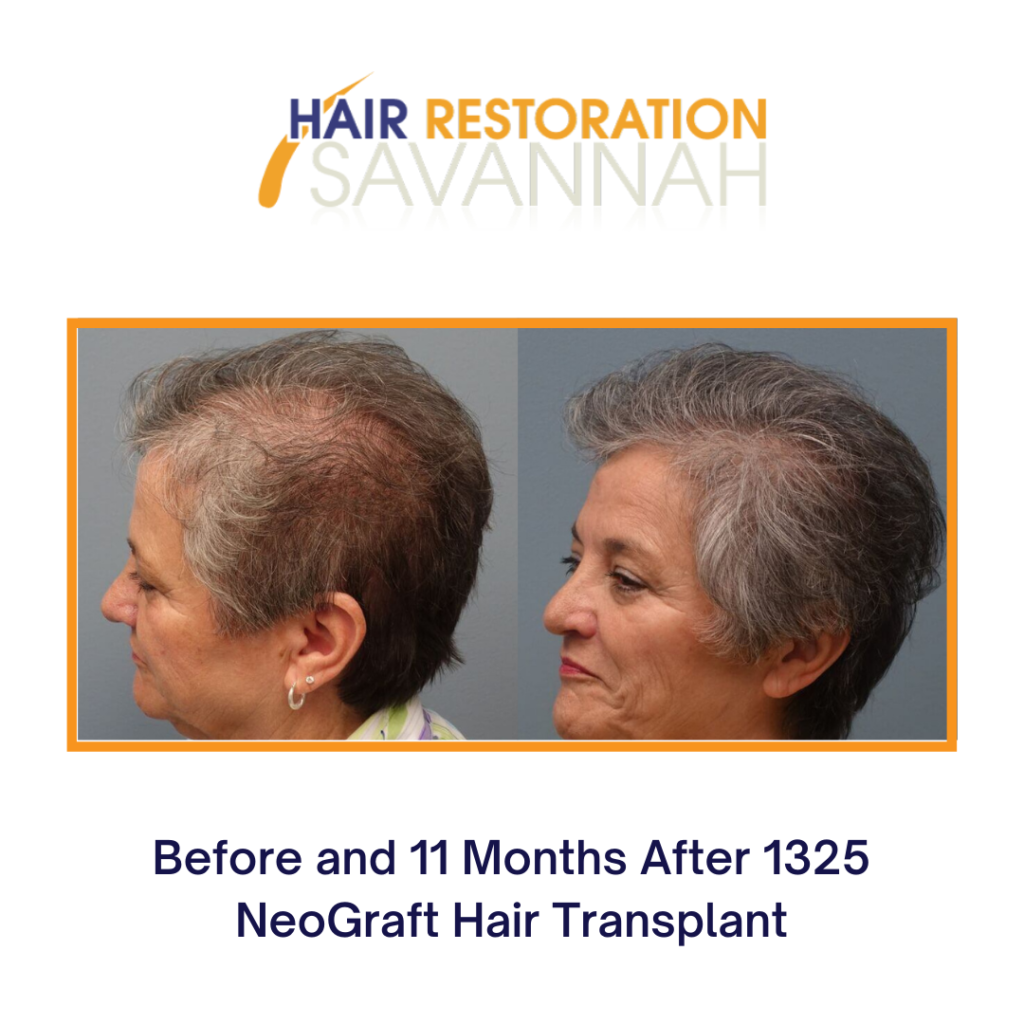 Before and after PRP and NeoGraft