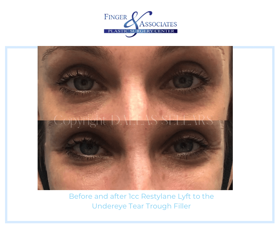 Before and After 1cc Restylane Lyft to the Under eye Tear Trough Filler