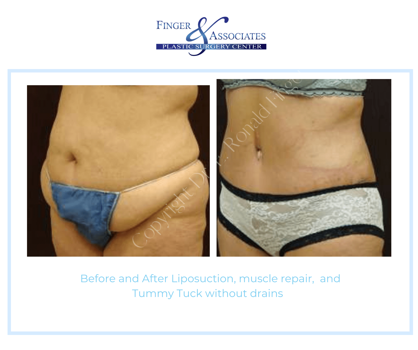 Before and after Tummy tuck without drains and liposuction