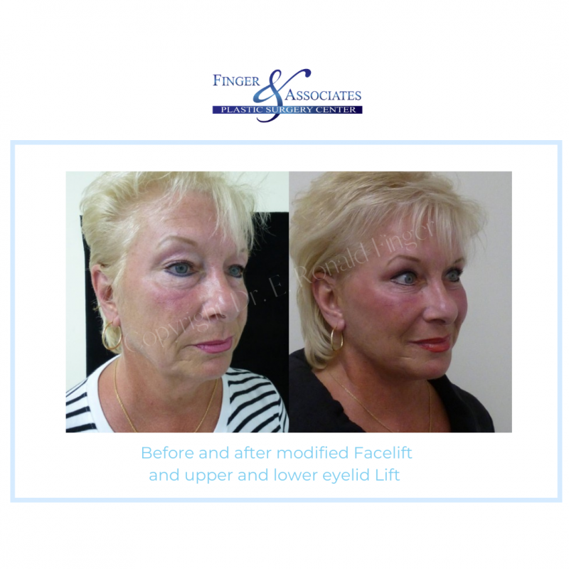 Before and after modified facelift and lower and upper eyelid lift