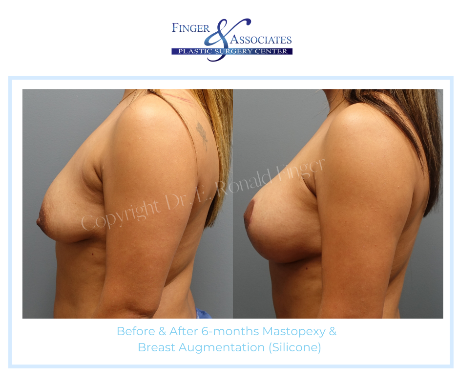 before and after breast lift and breast augmentation
