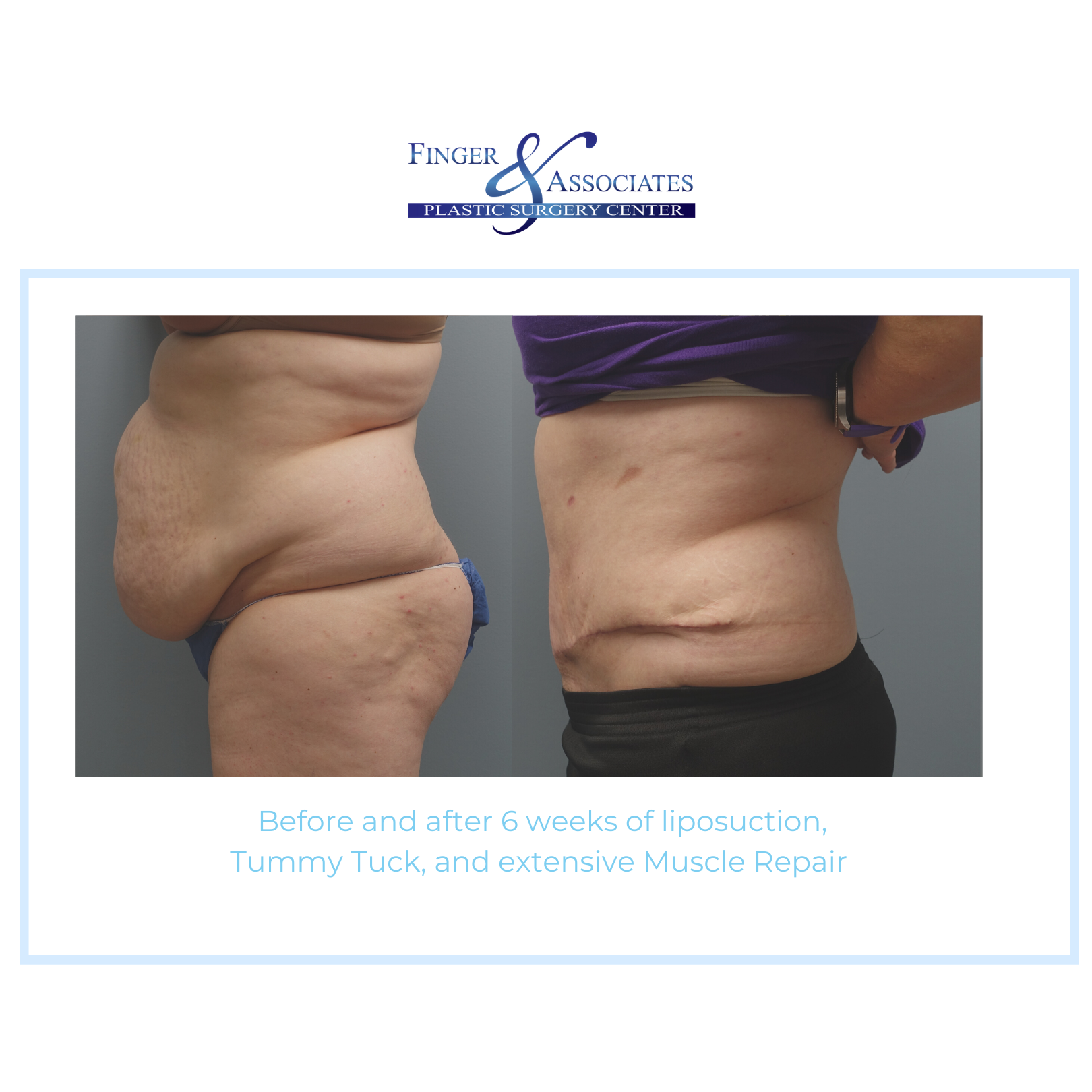 tummy tuck and lipo + muscle repair