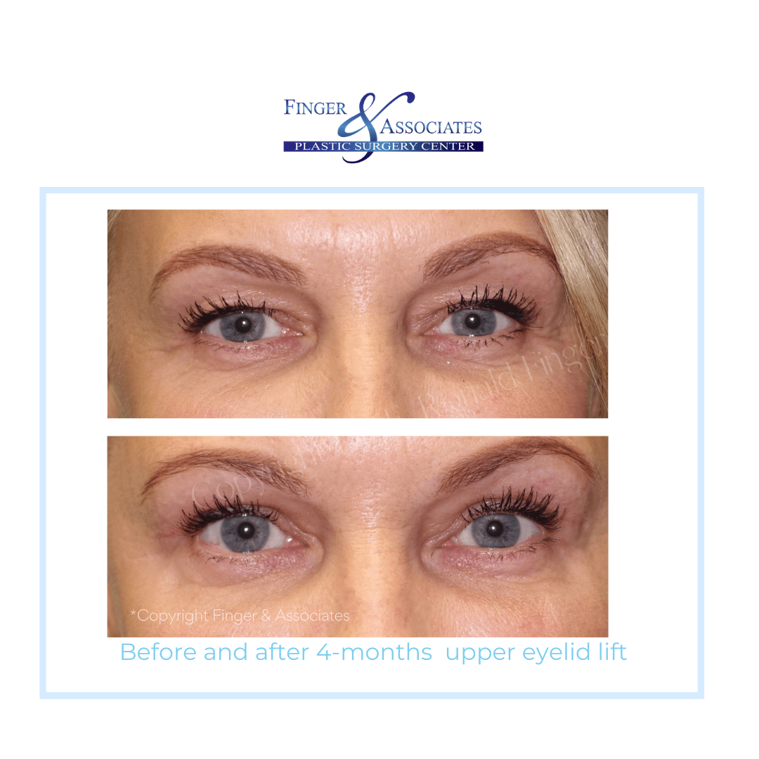 before and after upper eyelid lift