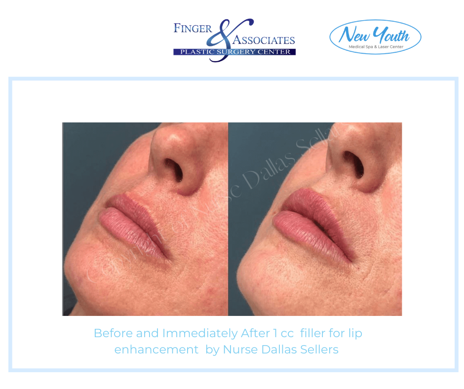 lip fillers by Dallas before and after