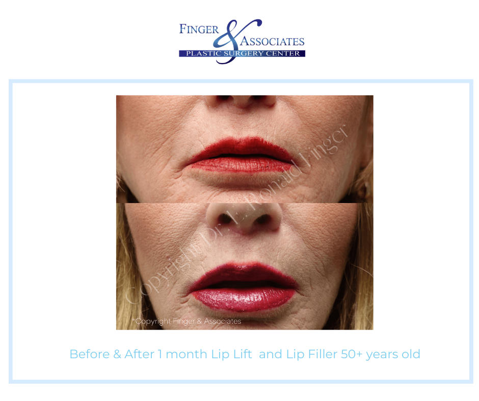 facial plastic surgery results