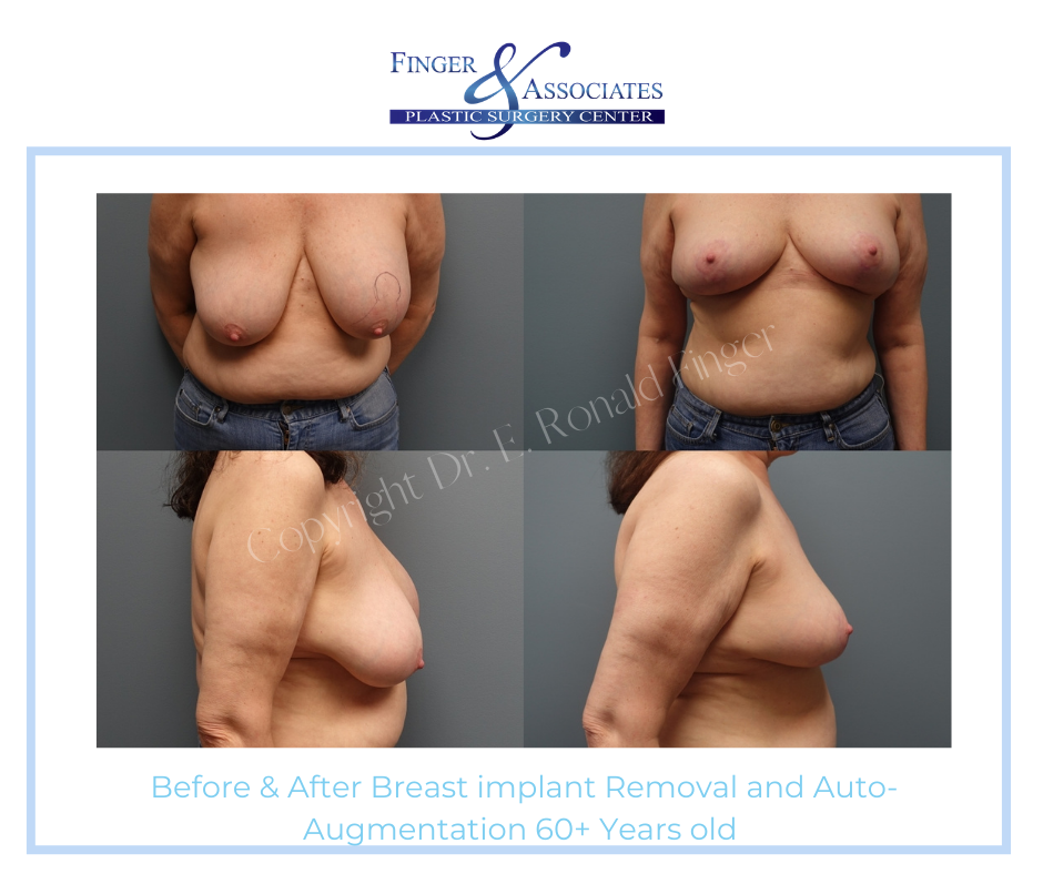 Before and After Breast implant removal and Auto-Augmentation 60+ years old