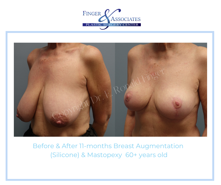 Before and After 11-months Breast Augmentation (Silicone) and Mastopexy 60+ years old