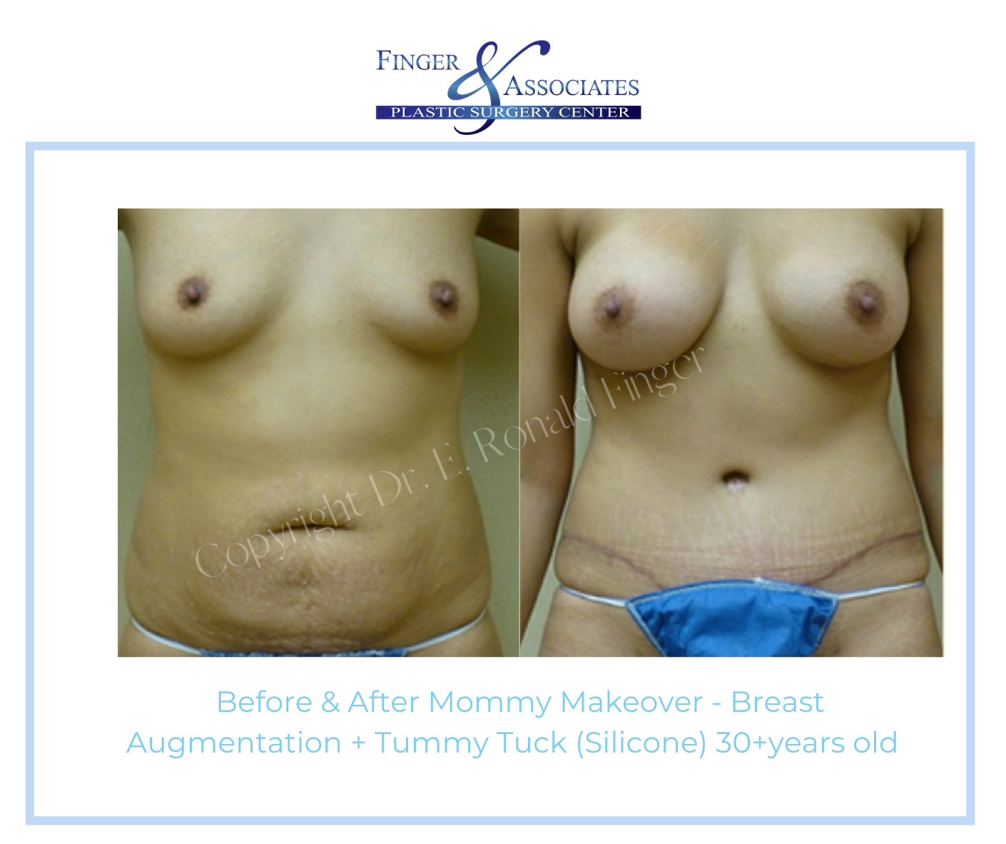 Before and After Mommy Makeover - Breast Augmentation + Tummy Tuck (Silicone) 30+ years old