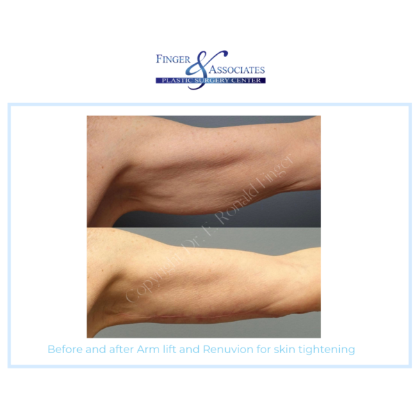 Before and After Arm Lift and Renuvion for Skin Tightening