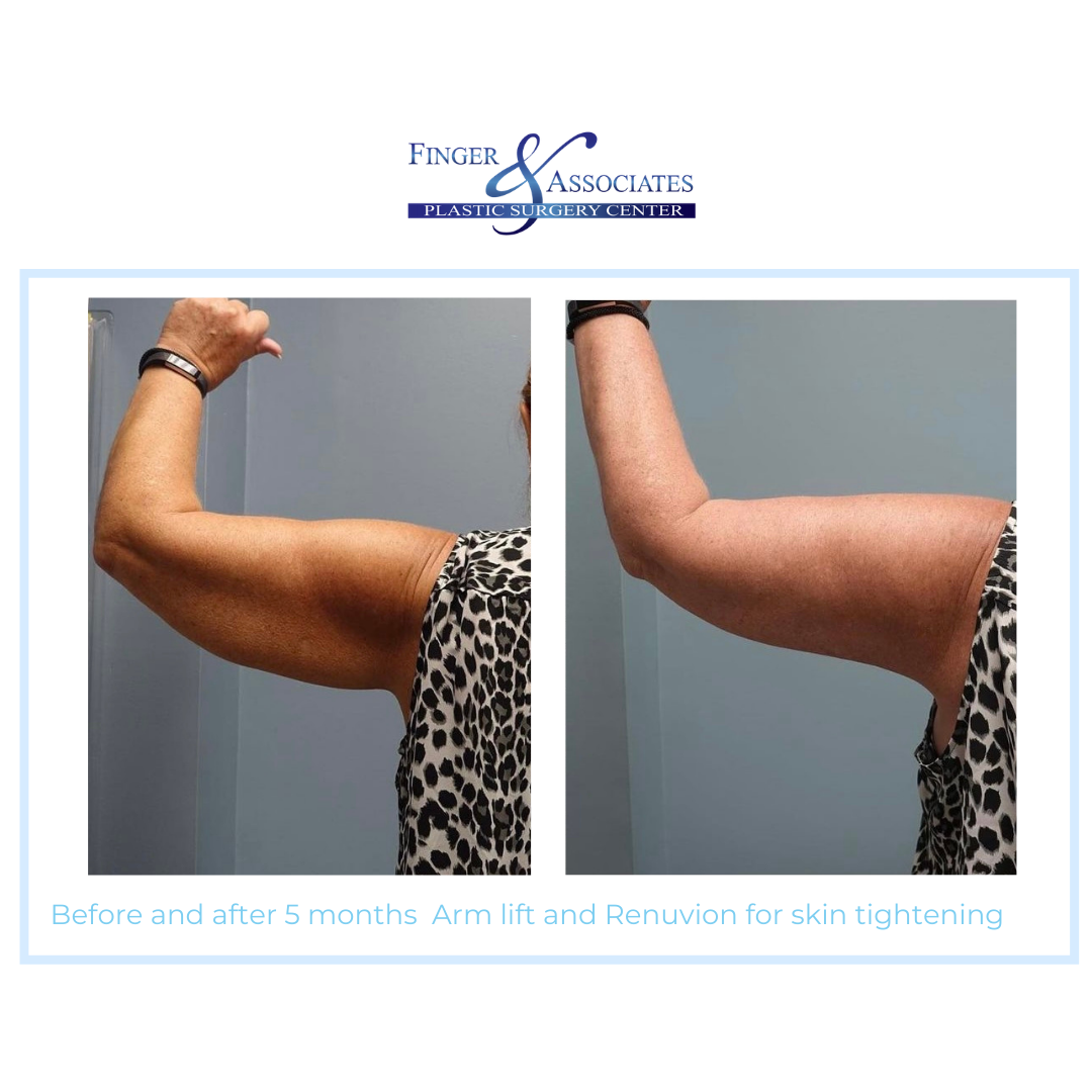 Before and After 5 months Arm Lift and Renuvion for Skin Tightening