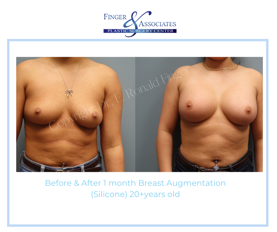 before and after breast augmentation