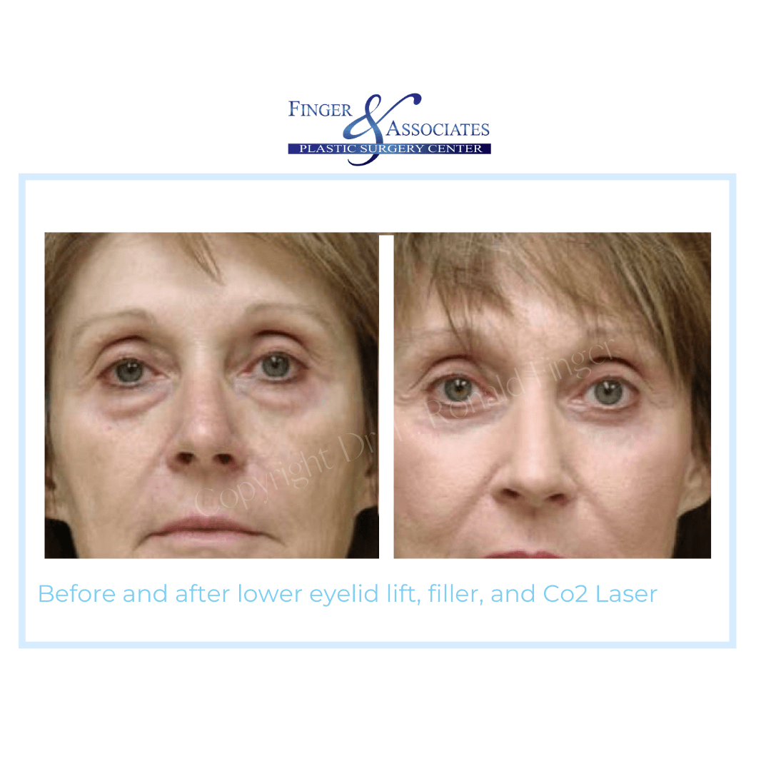 Before and After Lower Eyelid lift, filler and Co2 Laser