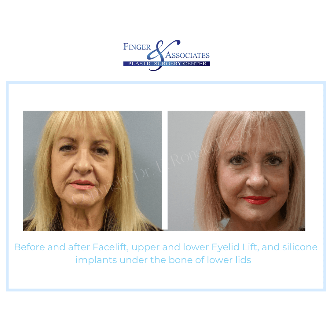 Before and After Facelift, upper and lower Eyelid Lift and Silicone implants under the bone lower lids