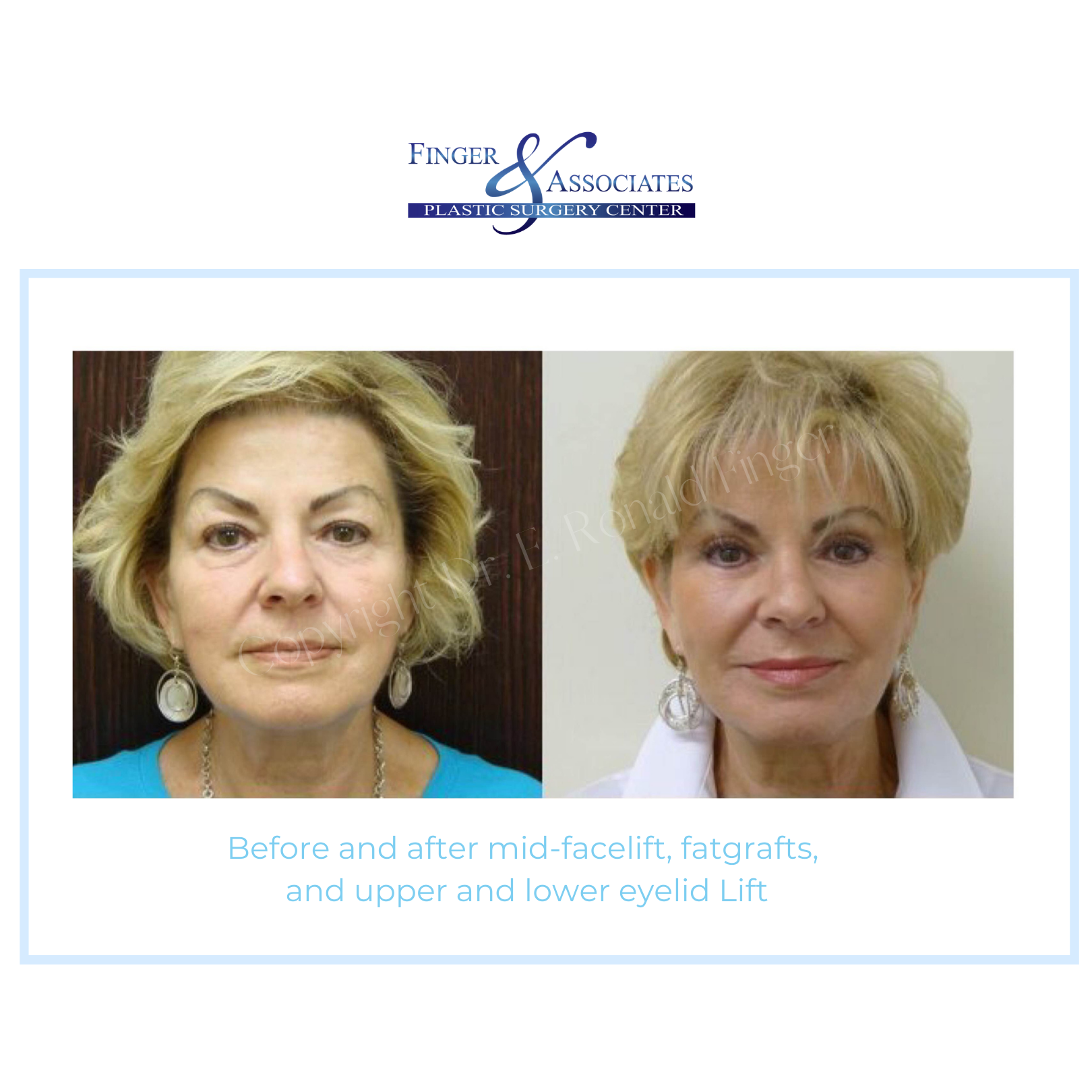 before and after mid facelift and eyelid lift