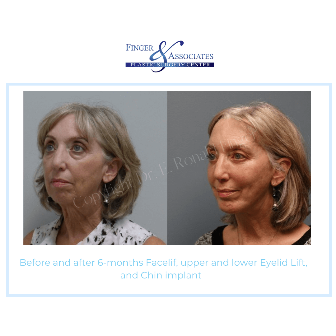 Before and After 6-months Facelift, Upper and Lower Eyelid Lift, and Chin Implant