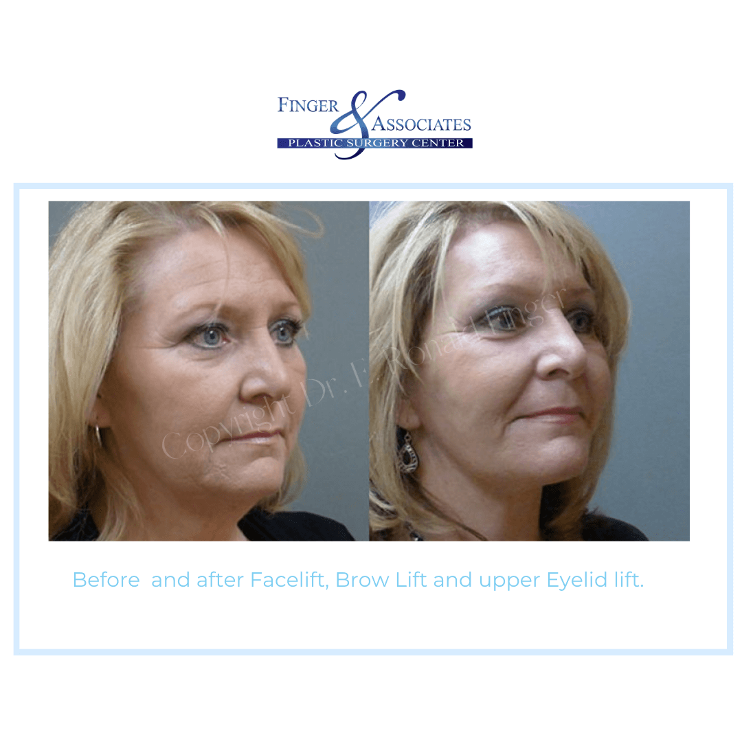 Before and After Facelift, Brow Lift and Upper Eyelid Lift